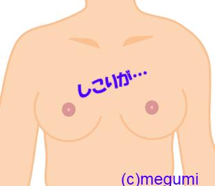 「乳癌、硬い」の画像検索結果